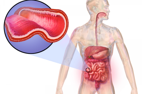 Medical illustration of Crohn's Disease (Credit: BruceBlaus)