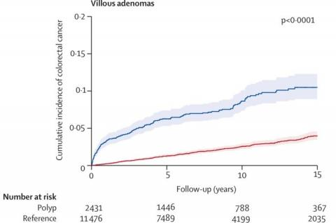 Risk of colorectal cancer in patients with polyps representing villous adenoma (Credit: Karolinska Institutet)