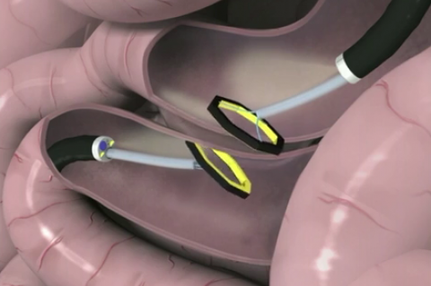 Incision-less Anastomosis System (Credit GI Windows)