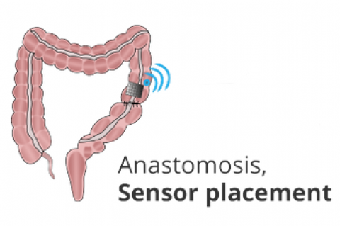 Wireless sensor for early detection of anastomotic leaks