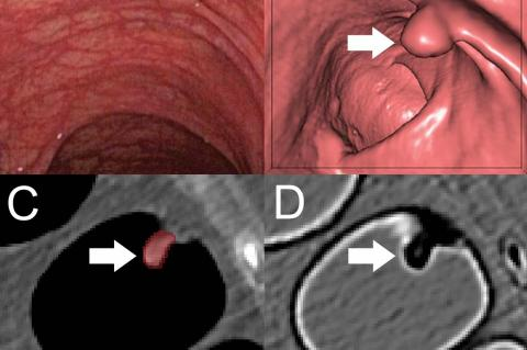 A, Optical colonoscopy and, B-D, CT colonography of a 9-mm polyp (arrow) in the descending colon of a 78-year-old woman. B, Virtual fly-through three-dimensional reconstructions were used for exact polyp localization. C, Manual polyp segmentation was performed in multiplanar two-dimensional CT colonography images. D, CT colonography images were preprocessed for image feature extraction by application of a dedicated filter. (Credit: Radiological Society of North America)
