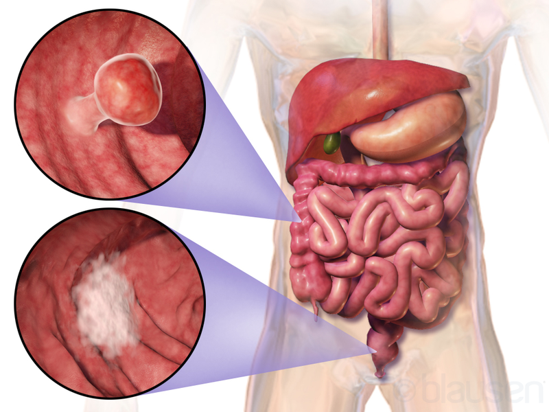 Review Of Laparoscopic Surgery For Colon Cancer Coloproctology News