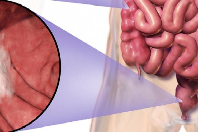 Wide Variation In Colorectal Cancer Rates After Colonoscopies In England Coloproctology News